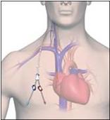 Tunneled-Catheter