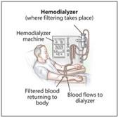 hemodialyzer